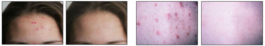 Acne - Before and After